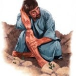 Religious Stock Image injured bruised hurt