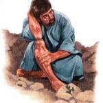 Religious Stock Image injured bruised hurt